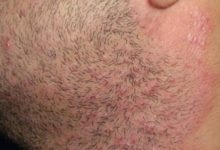 أهم أسباب الإصابة بالأمراض الجلدية والحساسية