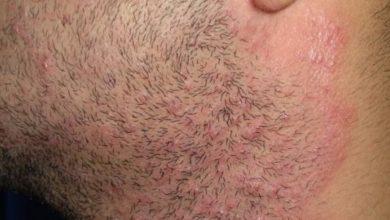 Photo of أهم أسباب الإصابة بالأمراض الجلدية والحساسية