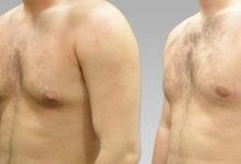 Photo of التثدي (تضخم الثدي عند الذكور) الأعراض والأسباب والعلاج