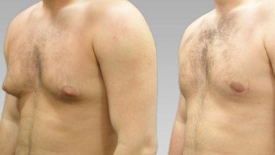التثدي (تضخم الثدي عند الذكور) الأعراض والأسباب والعلاج