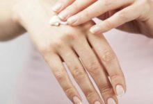 صورة سبعة علاجات منزلية للجلد الجاف