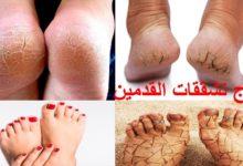 Photo of أفضل العلاجات المنزلية لكل من يعاني من تشقق القدمين