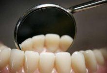 8 نصائح ذهبية لحماية أسنانك من التسوس
