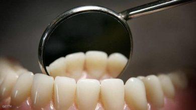 Photo of 8 نصائح ذهبية لحماية أسنانك من التسوس