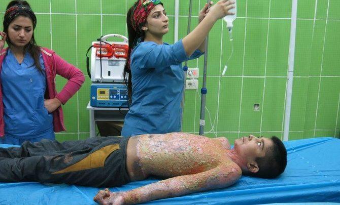 تركيا متهمة باستخدام ذخائر الفسفور غير القانونية في سوريا