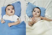 زيارة كبار الجراحين السعوديين لفصل التوأم الملتصق