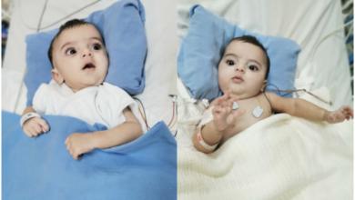 Photo of زيارة كبار الجراحين السعوديين لفصل التوأم الملتصق