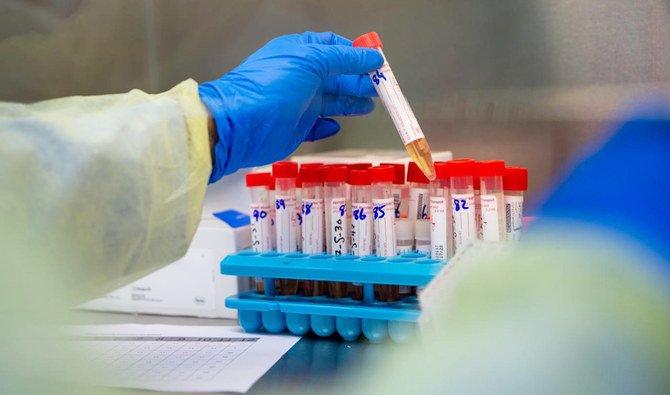 المملكة العربية السعودية تقود دراسات سريرية متقدمة لعلاج الفيروس